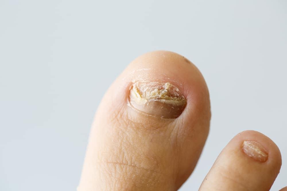 le syndrome des ongles jaunes
